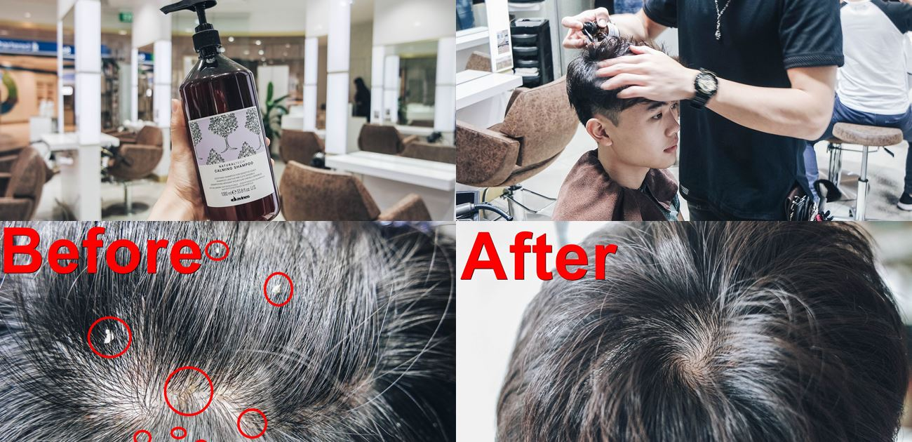 Kenjo Salon Scalp Treatment