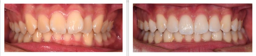 Invisalign Final Update - Before and After